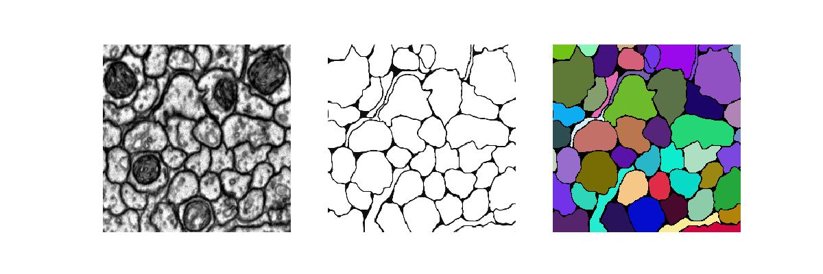 UNet: a convolutional network for biomedical image segmentation